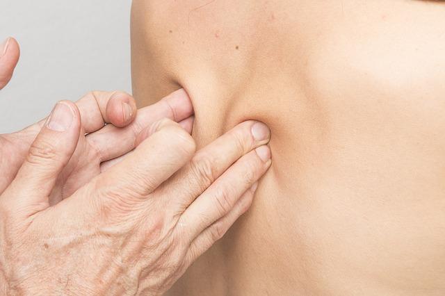 Tratamiento para la escoliosis en zaragoza